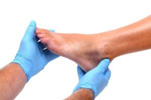 foot contusion